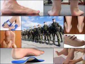Двустороннее плоскостопие 2 степени берут ли в армию