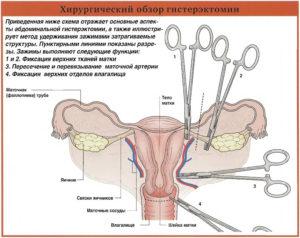 Положена ли инвалидность после операции по удалению матки и яичников