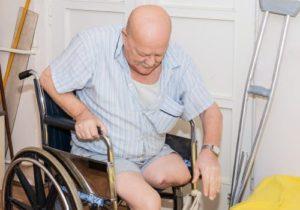 Как оформить инвалидность в больнице после ампутации ноги